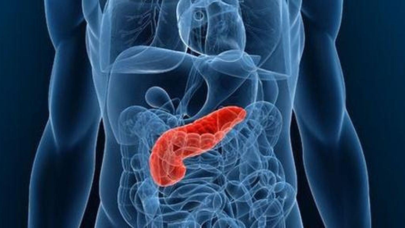 Neisidioblastosis – síndrome de hipoglucemia pancreatógena no insulinoma